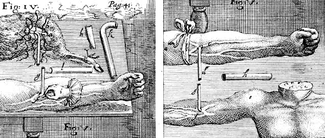 The history of intravenous infusion